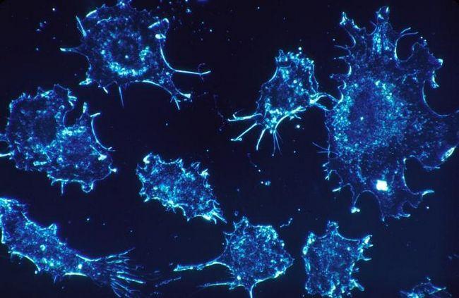 bolesti stadija karcinoma