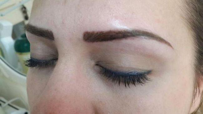 nakon uklanjanja uklanjanja dlaka ukloniti kosu lica