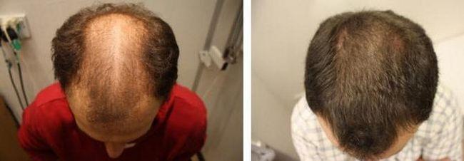 aktivator rasta dlaka rasteksa odgovora