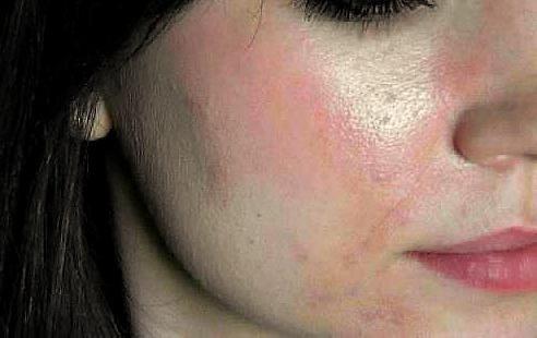 alergiju na nosne kapljice