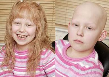 Alopecija areata u djece