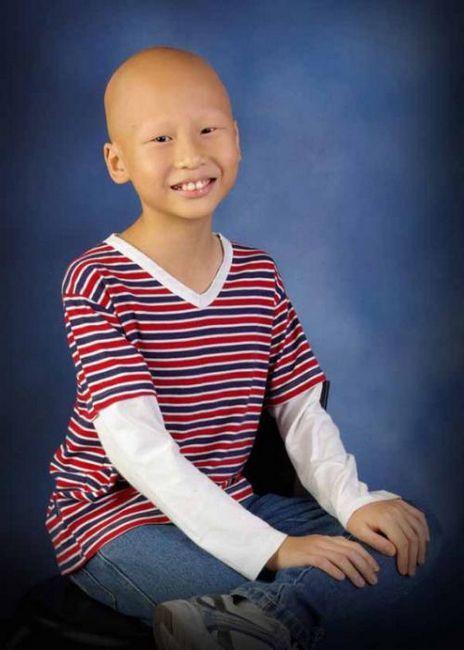 Ukupno alopecija u djece