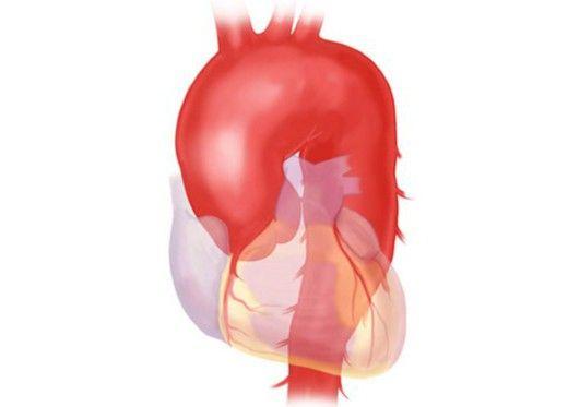 anatomija aorte