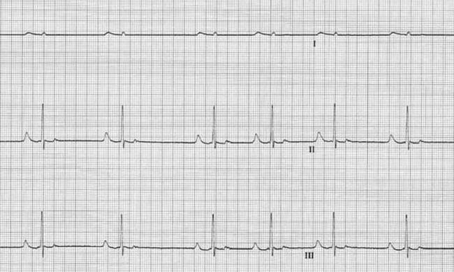 sinusna aritmija srca