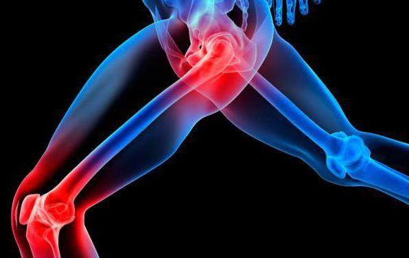 priručnik za rukovanje injekcijama artrosana