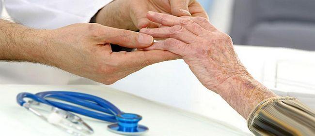 liječenje arthrosan korisnički vodič