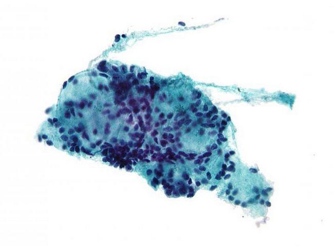 biopsija aspirata štitnjače