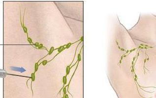 biopsija aspirata maternice