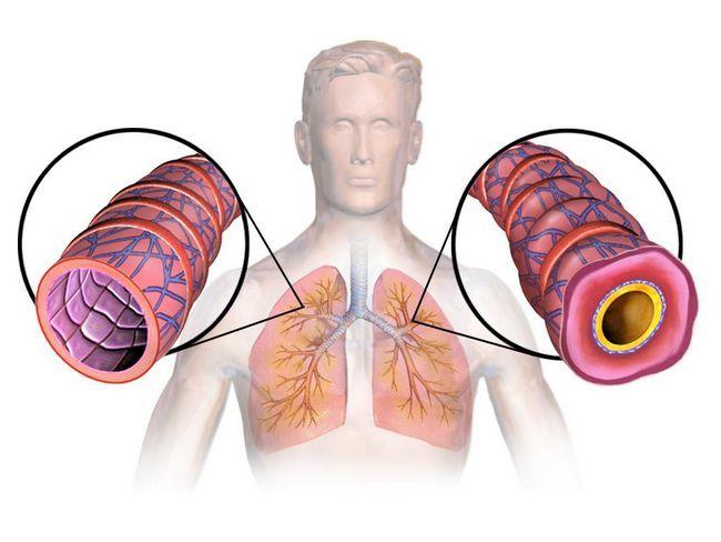 Astma: simptomi, uzroci, dijagnoza i liječenje