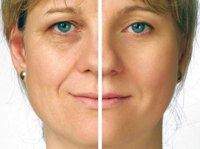 ne-kirurško podizanje lica