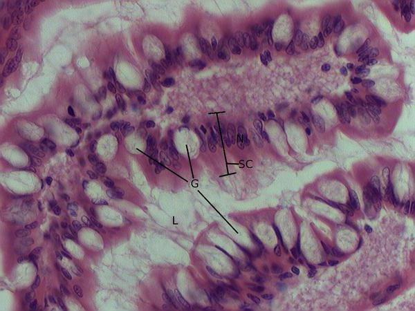 vrčastih stanica crijeva