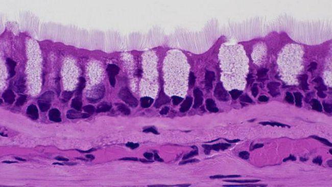 antitijela na vrčaste stanice