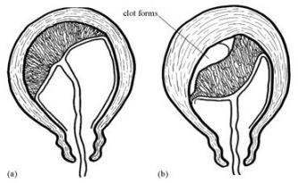 kontrakcija maternice nakon porođaja