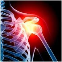 osteoartritis prvog stupnja spoja zgloba ramena