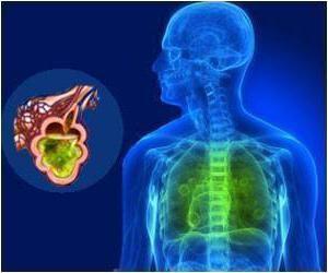 akutna respiratorna bolest