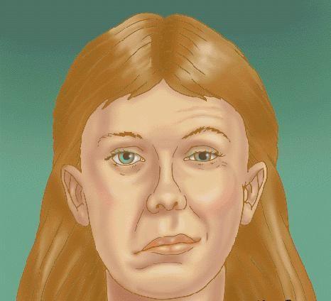 neuritis živčanog lica