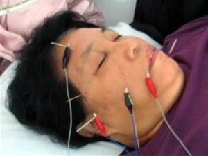 akupunktura s neuritisom živčanog lica