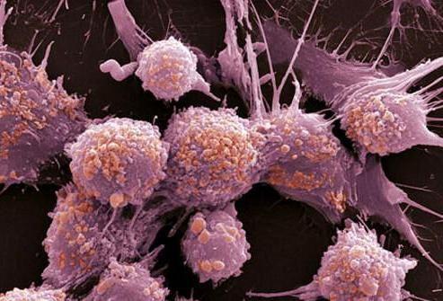 Neoplastični je proces rak ili ne