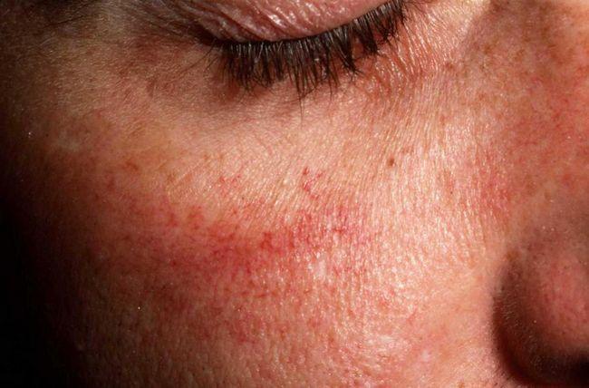 maska za osjetljivu kožu