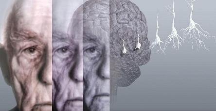 demencija, što je to