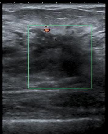 difuzna cistična fibroadenomatoza mliječnih žlijezda