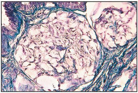 znakovi difuzne fibroadenomatoze