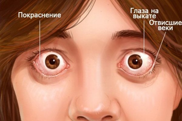 Okrutni simptom