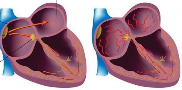 znakovi atrijske fibrilacije