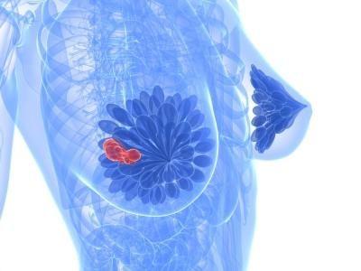 fibrozni tretman kismatzna mastopatija