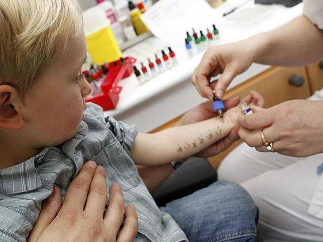 da prođe testove na alergene djetetu