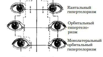 orbitalni hypertelorism