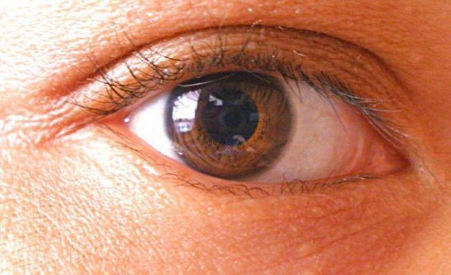 otvoreni kut glaukoma