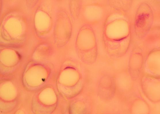 hormona reproduktivne žlijezde