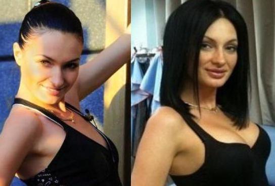 eugenia gusev prije i poslije plastike