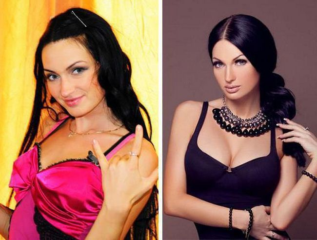 eugenia guseva prije i poslije plastične fotografije