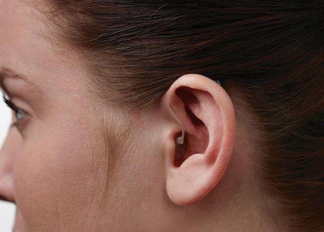 Vrste oštećenja sluha
