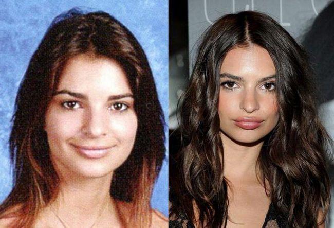 emily rahatzhkovski prije i poslije plastike