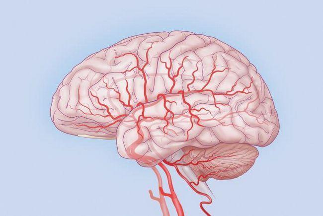 stupanj 3 encefalopatije