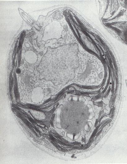 Eukariotska stanica