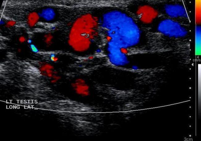 Fotografija ultrazvuka skrotuma