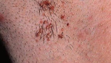 Papilloma virus kod muškaraca