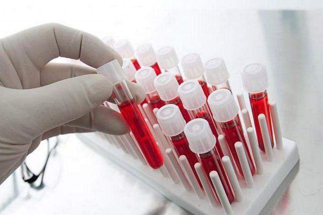 kako su bijele krvne stanice ukazane na test krvi