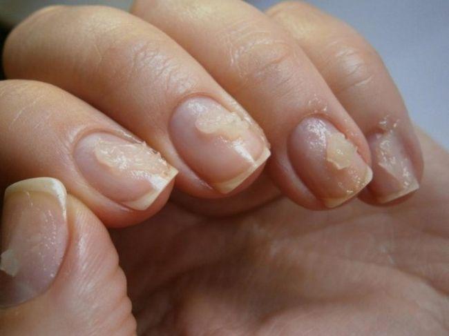 Liječenje noktiju