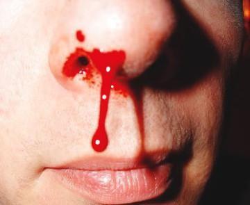krv iz nosa posljedice