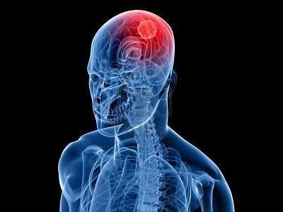 Simptom raka mozga