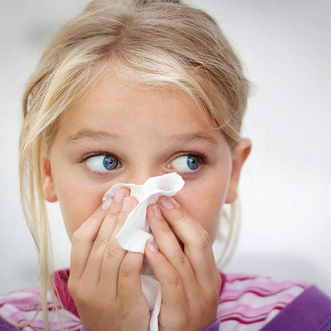 alergija kod djece
