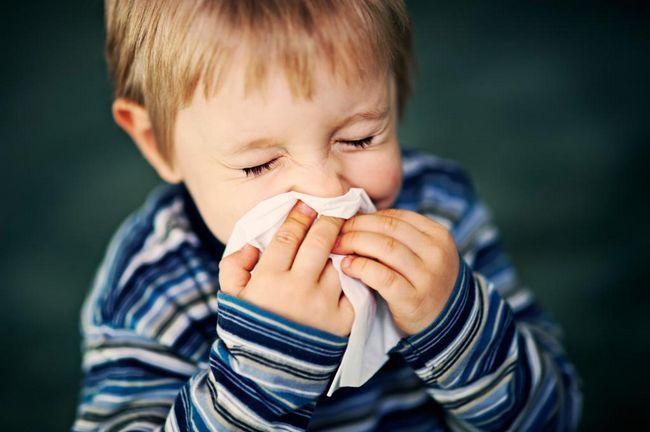 Alergije kod djece starije od 1 godine