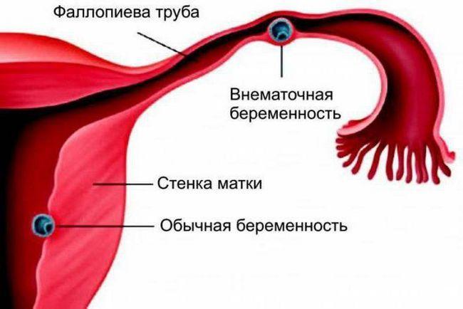 laparoskopija za ektopičnu trudnoću