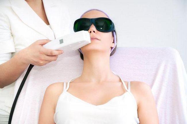 lasersko uklanjanje dlačica novosibirsk recenzije