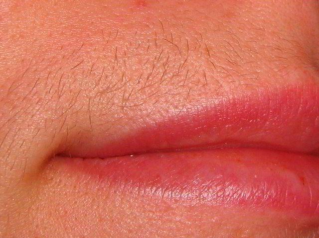 Laserska epilacija gornje usne